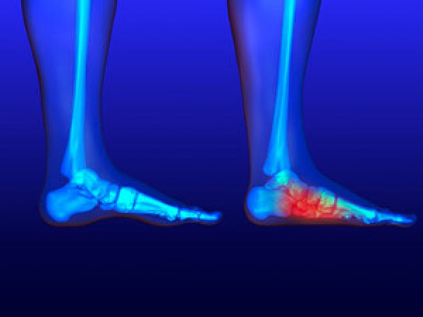 When to See a Podiatrist for Flat Feet