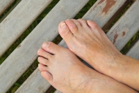 Treatment for Flexible and Rigid Hammertoes
